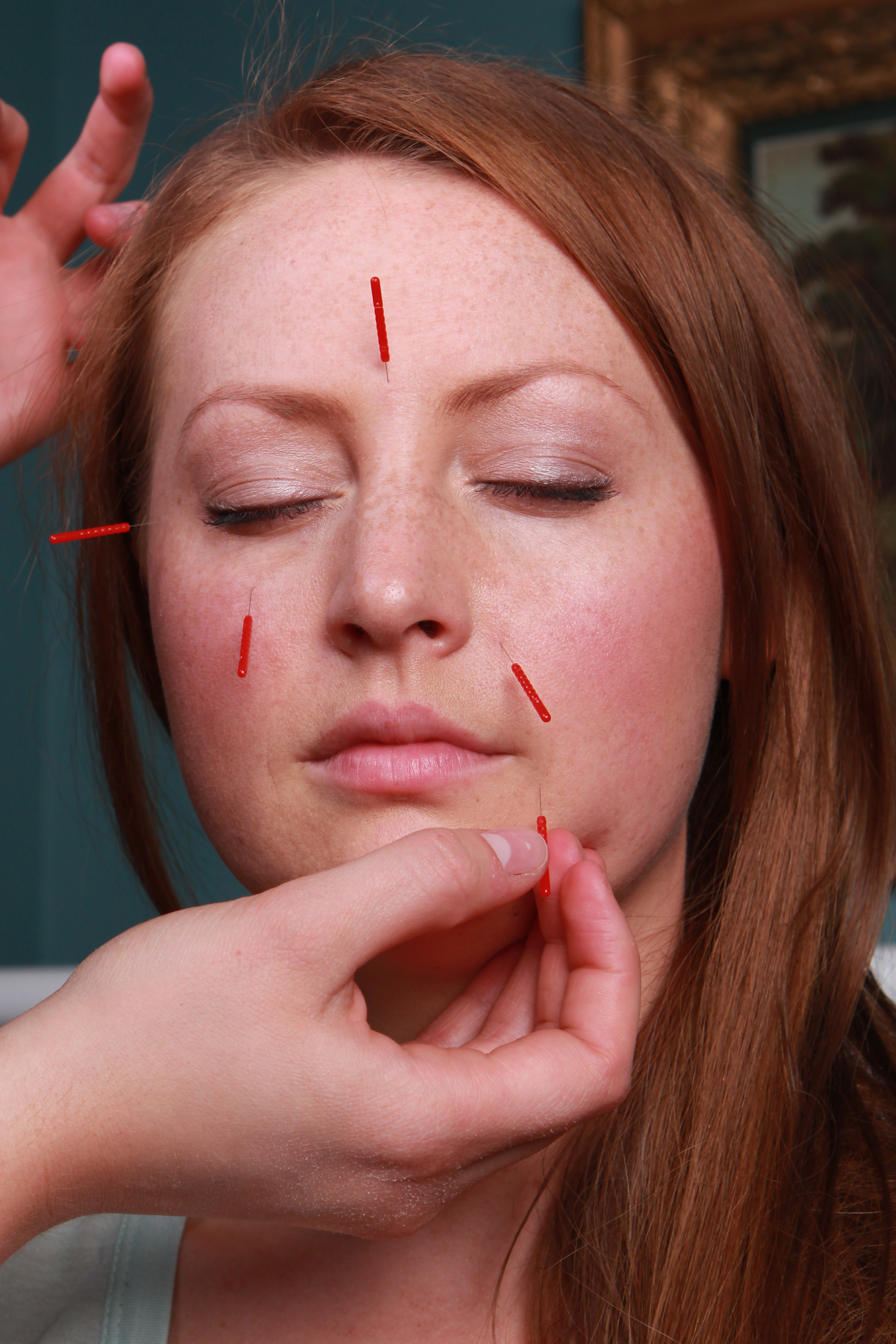 cosmetic acupuncture chinese medicine westshore victoria langford colwood